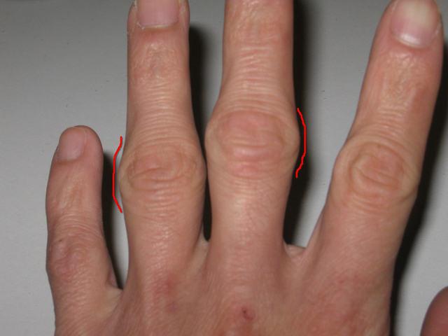 Воспаленные суставы пальцев