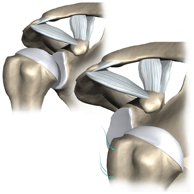 лопатка плеча
